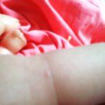 Miniloute et la varicelle